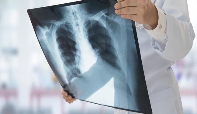 ROMA Si Fingeva Un Radiologo